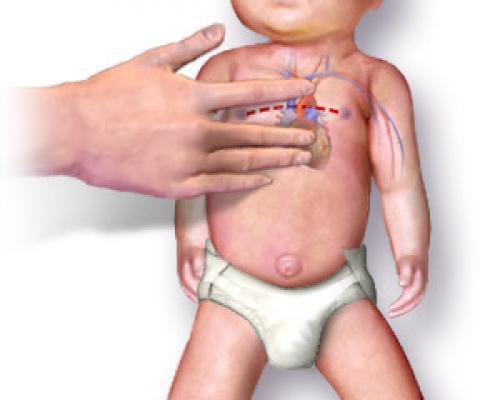 RCP Pediàtrica: Com realitzar la Reanimació Cardiopulmonar en nens/es
